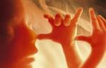 medium_foetus_1_.jpg